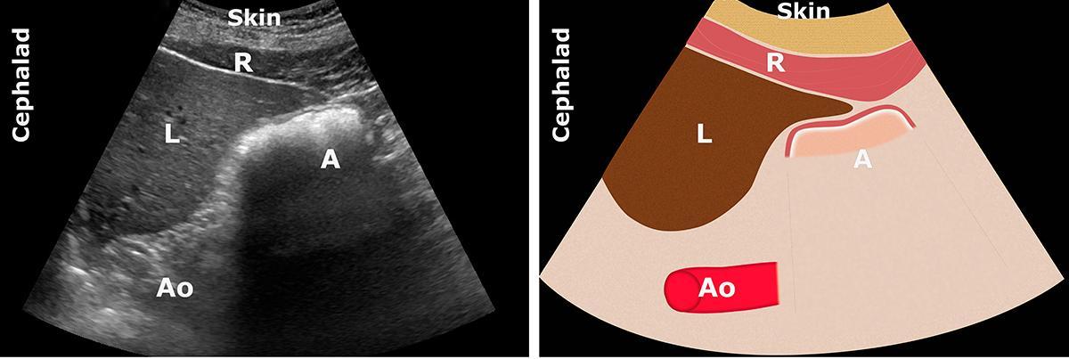 A: antrum; Ao: aorta; L: liver; R: rectus abdominis muscle