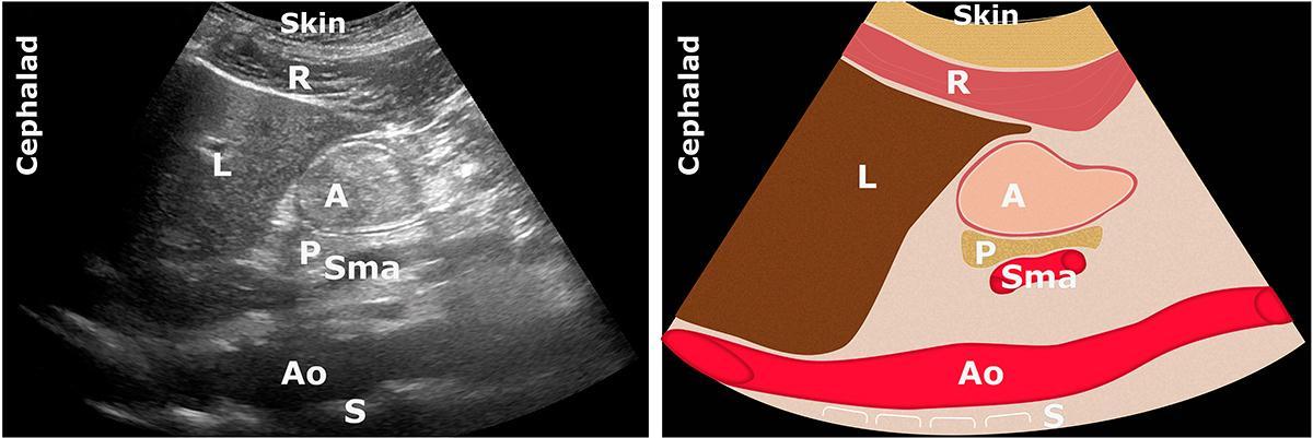 A: antrum; Ao: aorta; L: liver;  P: pancreas; R: Rectus Abdominis muscle; S: spine; Sma: superior mesenteric artery